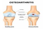2. Knee Osteoarthritis Causes