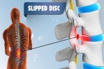3 Telltale Signs You Have a Slipped or Bulging Disc