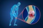 Can Stem Cells be a Solution for Cartilage Regeneration?