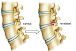 Causes and Risk Factors of Lumbar Herniated Disc