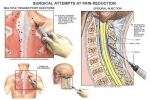 Chronic Pain: Trigger Point Injections