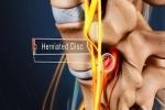 Diagnosing a Lumbar Herniated Disc