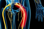 Is Piriformis Syndrome the Same Thing as Sciatica?