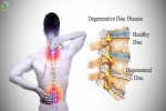 Pain Management: Degenerative Disc Disease (DDD)