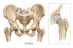 Pain Management: Hip Arthritis