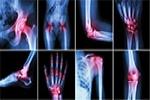 Pain Management: Joint Arthritis