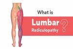 Pain Management: Lumbar Radiculopathy
