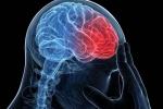 Pain Management: Migraine Headaches