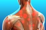 Pain Management: Myofascial Pain Syndrome