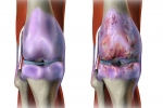 Pain Management: Osteoarthritis