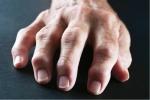 Pain Management: Rheumatoid Arthritis