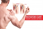 Pain Management: Rotator Cuff Syndrome