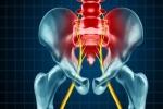 Pain Management: Sacroiliac Joint Dysfunction