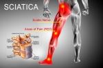 Pain Management: Sciatica