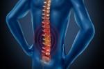Pain Management: Spinal Arthritis
