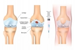 PRP Treatments for Arthritis