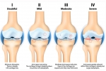Stem Cell Treatment for Osteoarthritis Provides Pain Relief