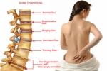 The Myths and Reality of Back Pain/Problems