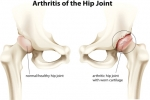 What Are the Treatment Options for Hip Arthritis?
