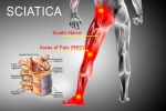 What is better for Sciatic Pain Relief? Epidural Steroid Injections or Exercise?