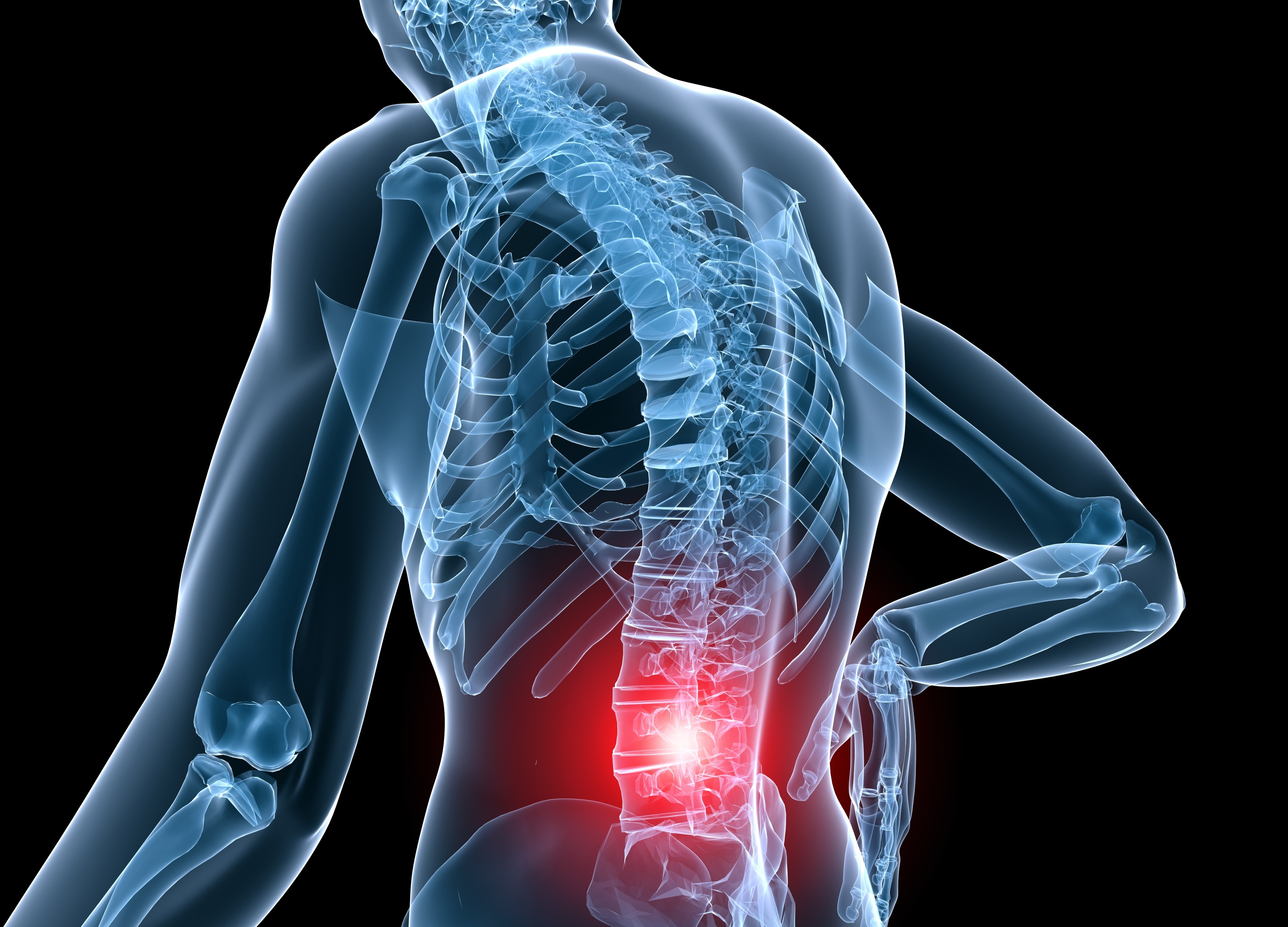 low back pain might begin as acute due to an injury but can become chronic   managing pain appropriately at an early stage can help limit symptoms in  both