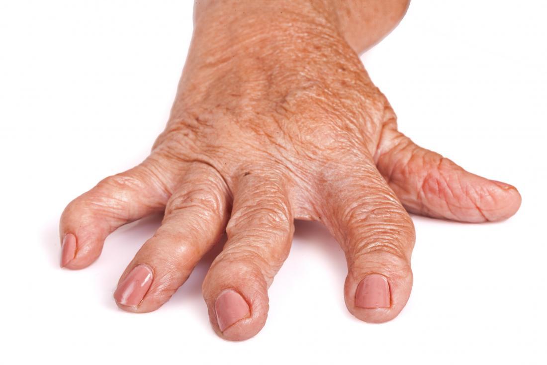 Formula as artrita reumatoida