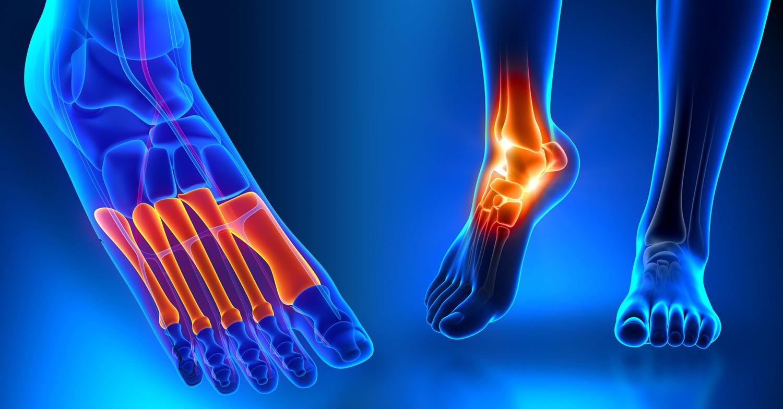 Blog Stem Cell Amp Platelet Procedures For Foot Amp Ankle